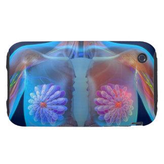 Computer artwork representing breast cancer, tough iPhone 3 case