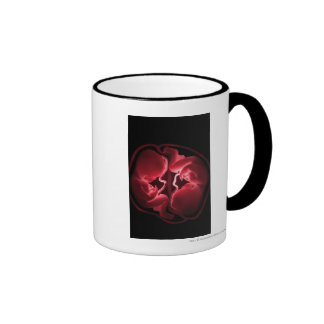 Conceptual image of a womb containing twins ringer coffee mug