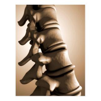 Conceptual Image Of Human Backbone 4 Postcard