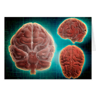 Conceptual Image Of Human Brain At Different Card