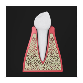 Conceptual Image Of Human Tooth 1 Canvas Print