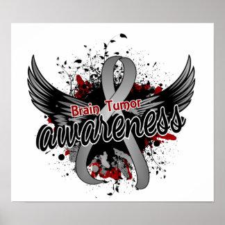Conciencia 16 del tumor cerebral póster