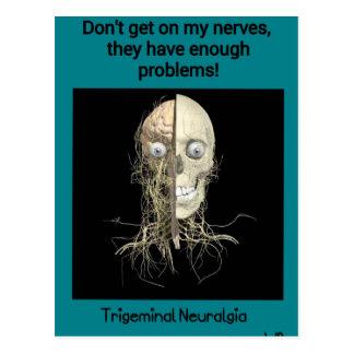 Conciencia de la neuralgia de Trigeminal Postal