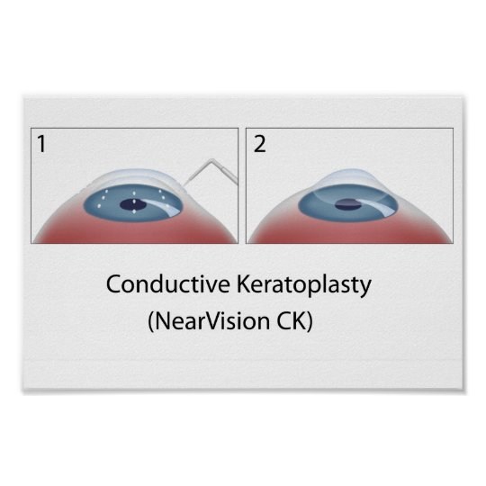 Conductive Keratoplasty (NearVision CK) Poster