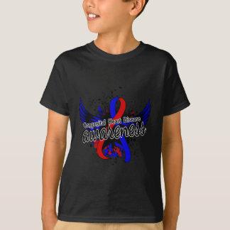 Congenital Heart Disease Awareness 16 T-Shirt