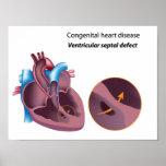 Congenital heart disease  Poster