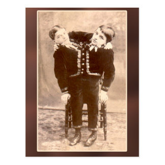 Conjoined Twins Vintage Cards and Postcards