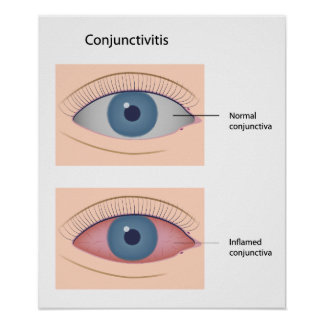 Conjunctivitis eye disease Poster