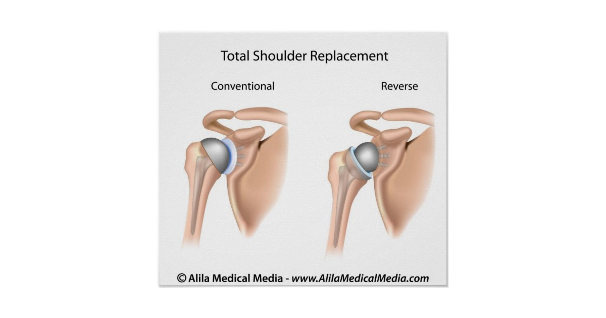 Conventional Vs Reverse Total Shoulder Replacement Poster
