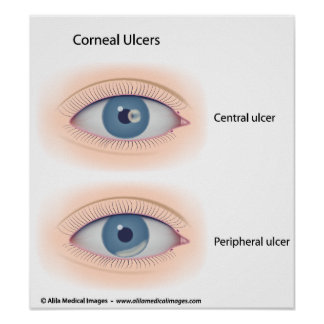 Corneal ulcer drawing poster