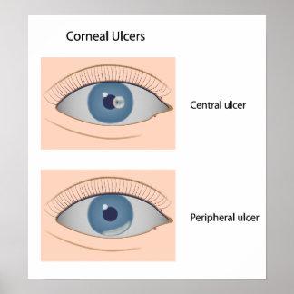 Corneal ulcer eye diseases Poster