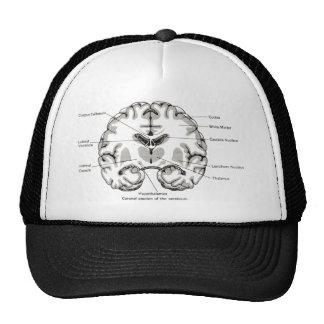 coronal section hats