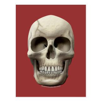 Cracked Skull Postcard