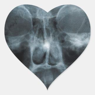 Cráneo de la radiografía pegatina en forma de corazón