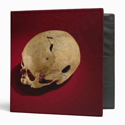 "Cráneo de Trepanned Carpeta 1 1/2"""