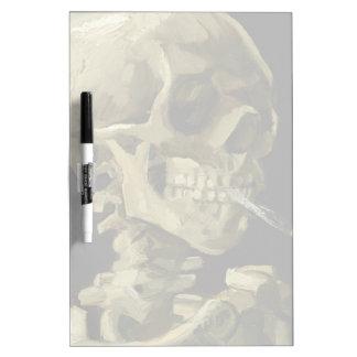Cráneo de Van Gogh el | con el cigarrillo ardiente Tablero Blanco