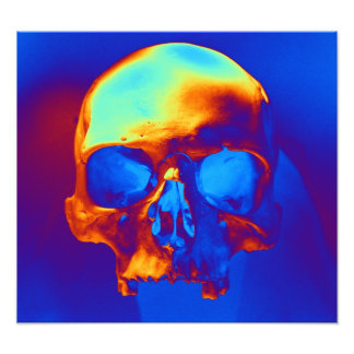 Cráneo Impresión Fotográfica