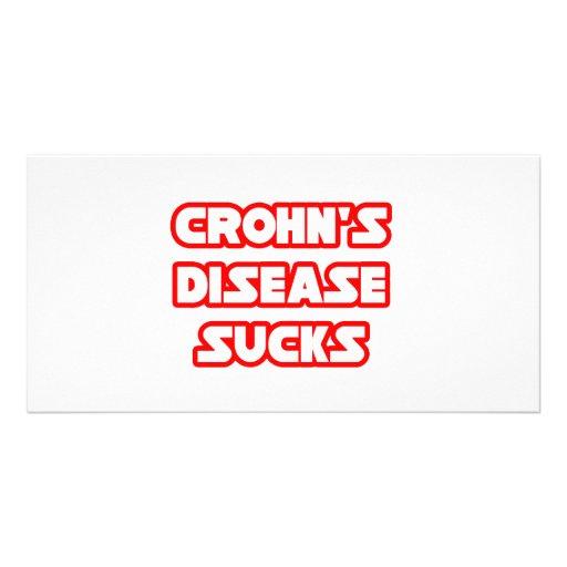 Crohn's Disease Sucks Custom Photo Card