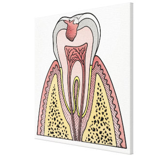 Cross section illustration showing tooth decay canvas print
