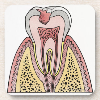 Cross section illustration showing tooth decay drink coaster