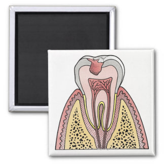Cross section illustration showing tooth decay refrigerator magnets