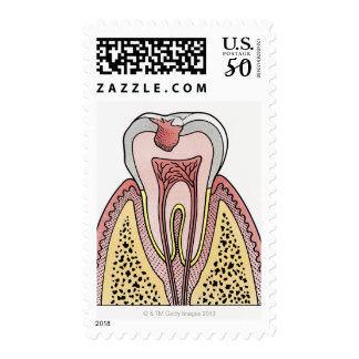 Cross section illustration showing tooth decay postage