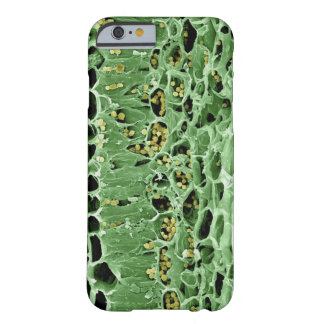 Cross Section of Leaf Barely There iPhone 6 Case