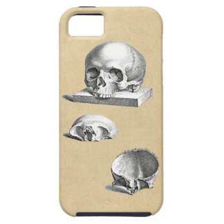 Cross Section of the Human Skull iPhone SE/5/5s Case
