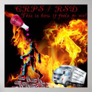 CRPS/RSD esto es cómo siente a mí el poster ácido Póster
