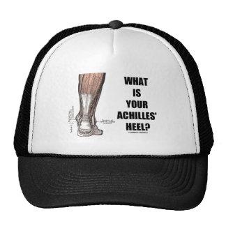 ¿Cuál es el su talón de Aquiles? (Anatomía del tal Gorras
