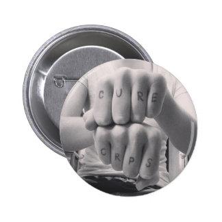 Curación CRPS Pins