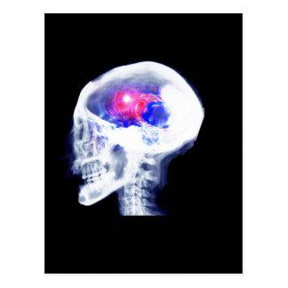 Cyborg Brain Postcard