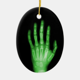 DÉ A RADIOGRAFÍA verde ESQUELÉTICA LA ROTURA Ornamentos De Reyes