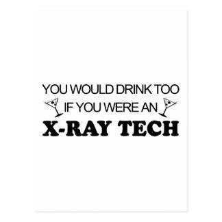 De la bebida tecnología de la radiografía también  tarjeta postal