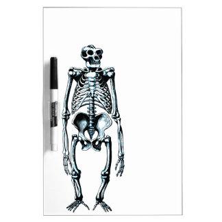 dead gorilla skeleton Dry-Erase board