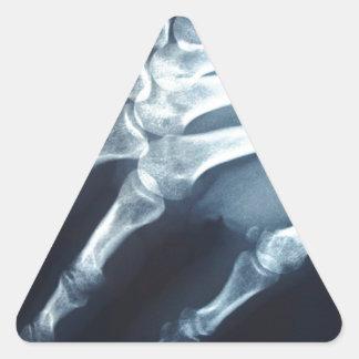 Dedos médicos de la mano de la proyección de calcomania de trianguladas