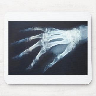 Dedos médicos de la mano de la proyección de alfombrilla de ratón
