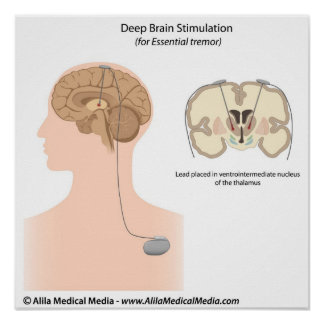 Deep brain stimulation for essential tremor poster