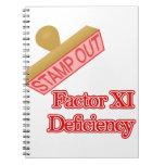 Deficiencia del factor XI Libros De Apuntes