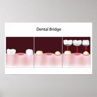 Dental bridge procedure Poster