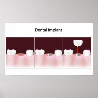 Dental implant procedure Poster