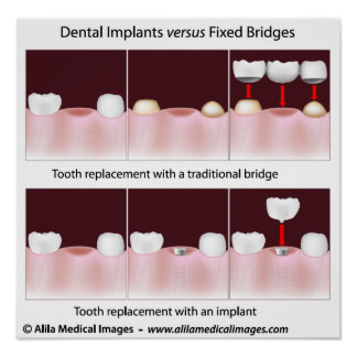 Dental implant versus bridge Poster