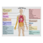 Detailed Chart of the Symptoms of Cystic Fibrosis Poster