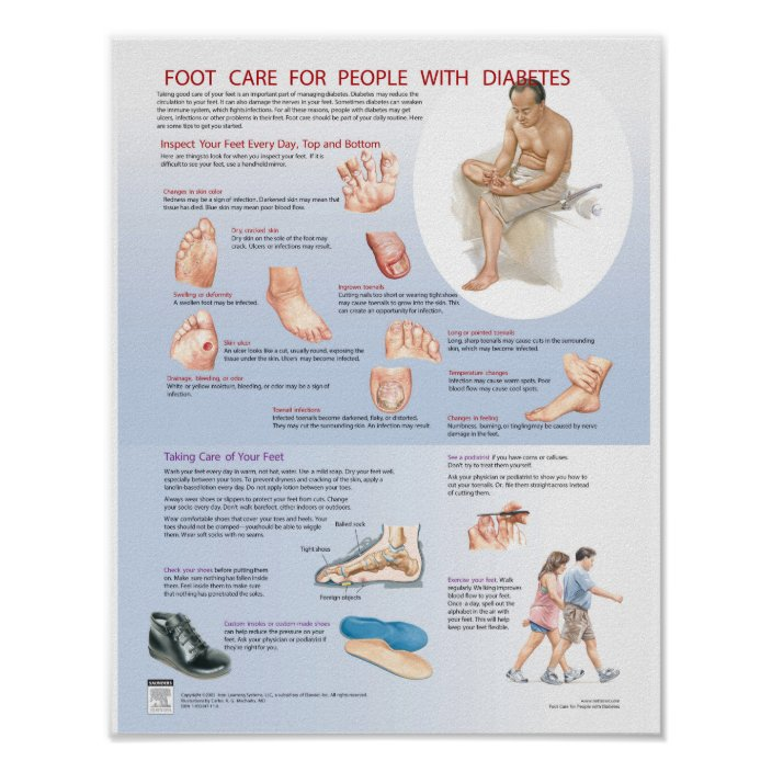 Diabetes Foot Care Poster Netter Chart Zazzle Com