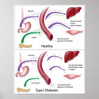Diabetes type 1 Poster