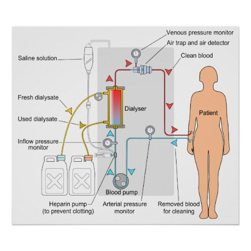 Diagram of a Haemodialysis Medical Treatment Poster