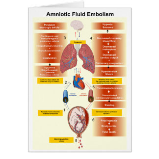 Diagram of an Amniotic Fluid Embolism AFE Greeting Card