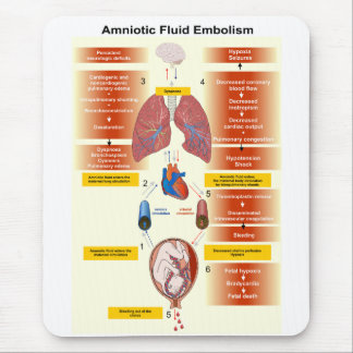 Diagram of an Amniotic Fluid Embolism AFE Mouse Pad
