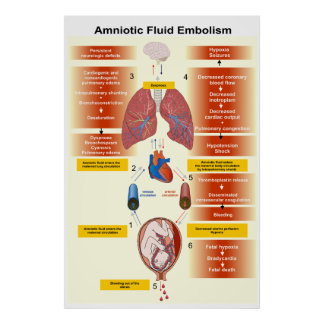 Diagram of an Amniotic Fluid Embolism AFE Poster
