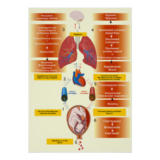 Diagram of an Amniotic Fluid Embolism Poster